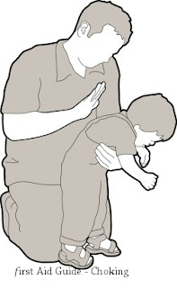 Choking in a child - First Aid Guide