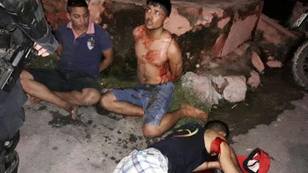 Flagra BPRaio mata e prende durante confronto
