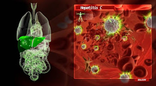 Penyakit hepatitis C terjadi dikarenakan adanya virus dari jenis hepatitis C (HVC)