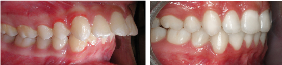 cách làm răng hết hô và khấp khểnh hiệu quả