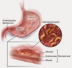 helycobacter menginfeksi lambung