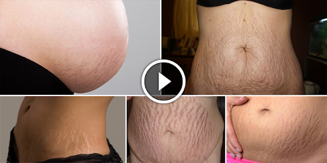 10 Proven Homemade Recipes To Remove Large Stretch Marks Very Fast