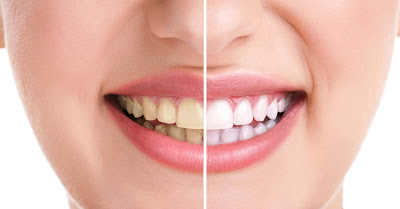 Jamnagar dentist dr bharat katarmal dental clinic teeth whitening procedure