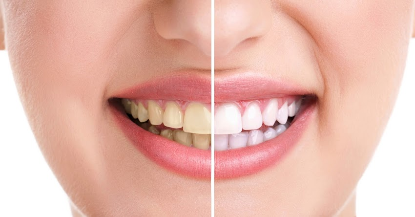 Teeth Whitening - Bleaching
