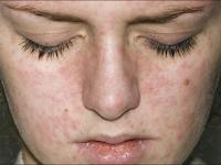 Iritasi Sesudah Perawatan Kulit Dengan Peeling Wajah? Adakah Yang Salah?