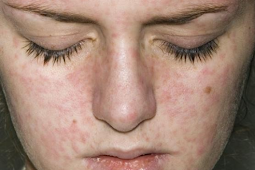 Iritasi Setelah Perawatan Kulit Dengan Peeling Wajah? Adakah yang Salah?