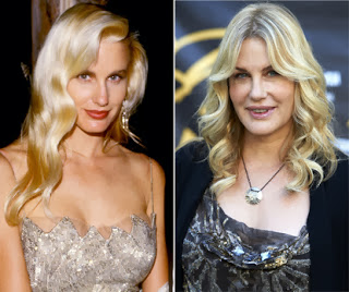 Daryl Hannah Plastic Surgery Gone Wrong Before And After