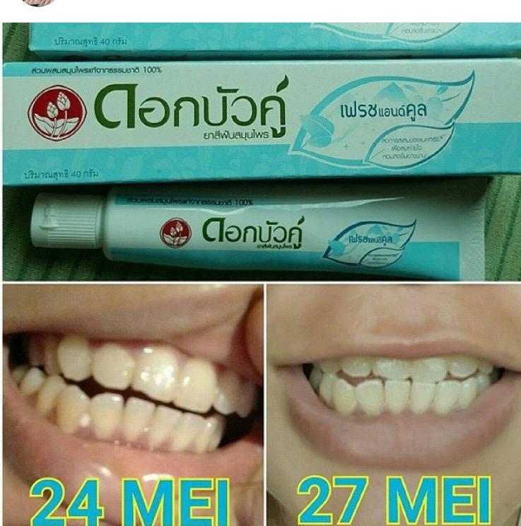 Dok Bk Pemutih Gigi Pemutih Gigi Alami 082331331539 Agny Shop