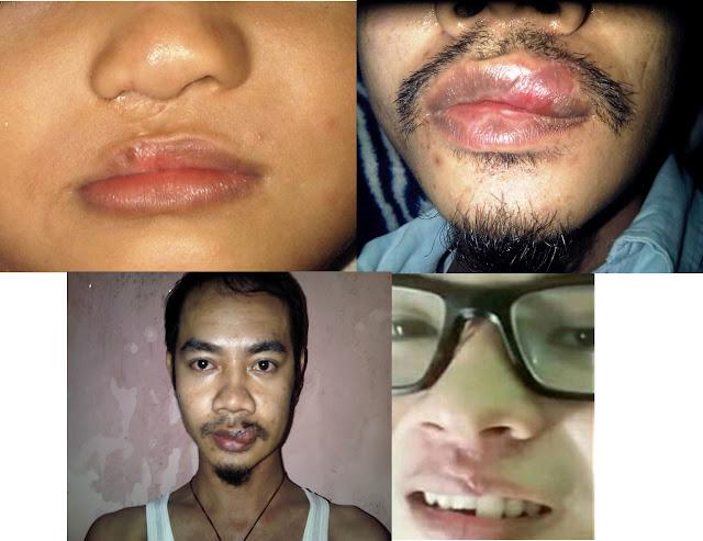 Cara Menghilangkan Keloid di Bibir Secara Alami dan Cepat