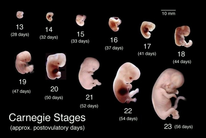 The Blog Fodder: Human Fetal Development - Part 2