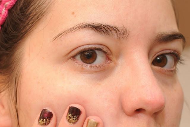 Hasil gambar untuk komedo di wajah