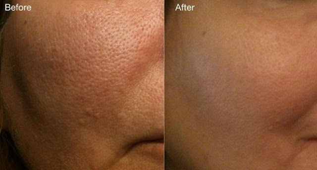 SHE MAKES HER DEEP PORES DISAPPEAR WITH JUST 1 INGREDIENT: YOU SHOULD DEFINITELY TRY THIS SIMPLE TRICK!