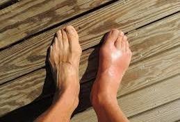Pengertian (Definisi ) Penyakit Pirai atau Gout