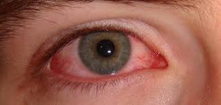Cara menyembuhkan iritasi mata