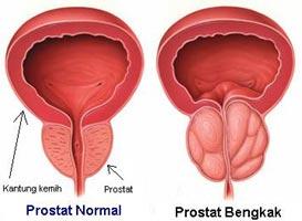 Cara Mengobati Prostat Yang Membengkak