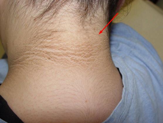 Kamu Harus Hati-Hati Jika Ada Tanda Di Bagian Belakang Leher Kamu Seperti Ini!