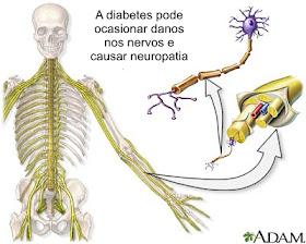 Da axonal complicações neuropatia