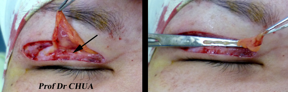 Eyelid Surgery By Prof Dr Cn Chua 蔡鐘能 Incision