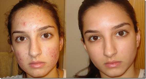 Esta mujer lavo su cara con esto por 3 días y elimino de su rostro las manchas, pecas e incluso arrugas