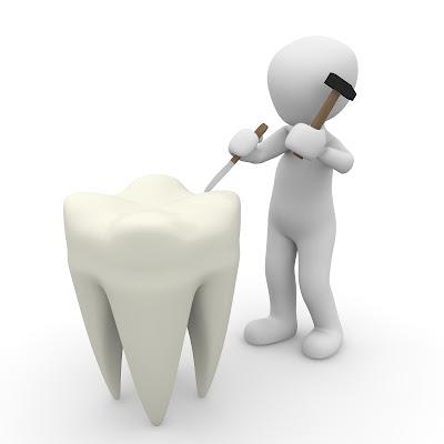 الم الضر المحفور,الم الضر,الم الاسنان,تسوس الاسنان,