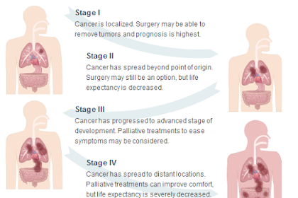Stages As Well As Life Expectancy Of Mesothelioma