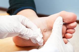 There are various ways to remove warts