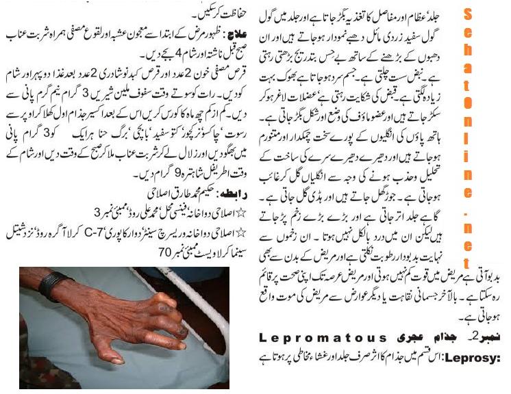 Leprosy Disease Symptoms and Treatment in Urdu - Diseases ...