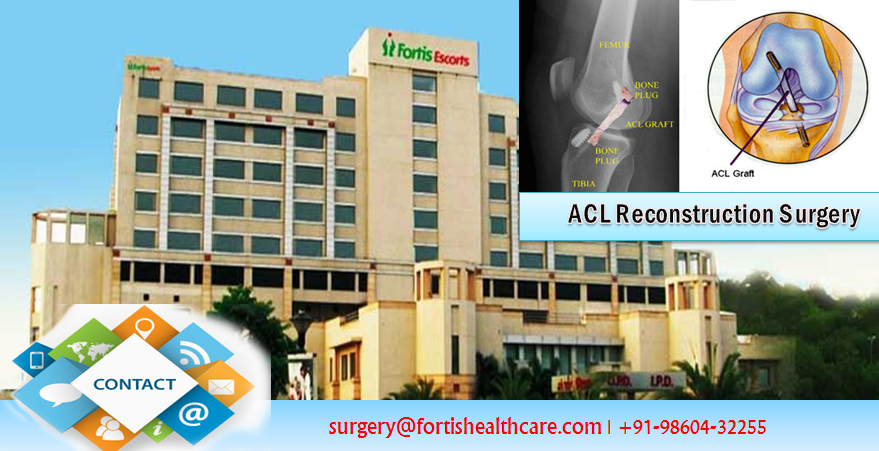 Fortis Hospital Knee Replacement ACL Reconstruction