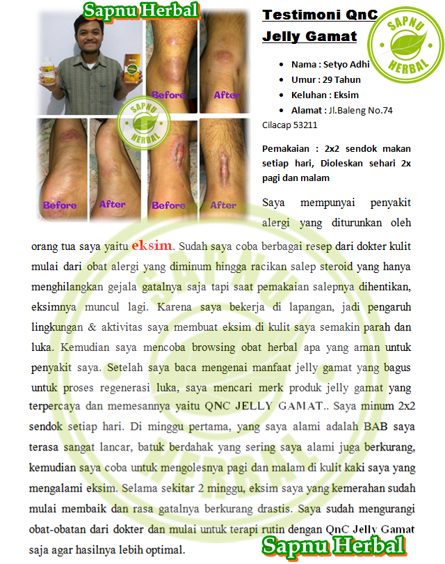 Cara Menyembuhkan Dermatitis Di Wajah Terampuh , TERBUKTI Mujarab!!