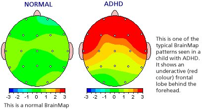 Image result for adhd normal