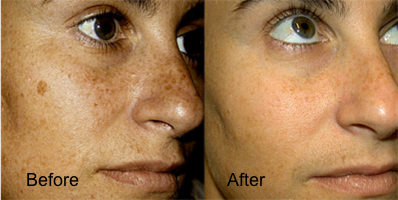 EyesOnYoou: Laser removal