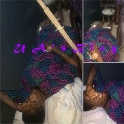 Edo Youths Reportedly Attack PDP Women Leader Over Calls For Buhari's Impeachment (Photo)