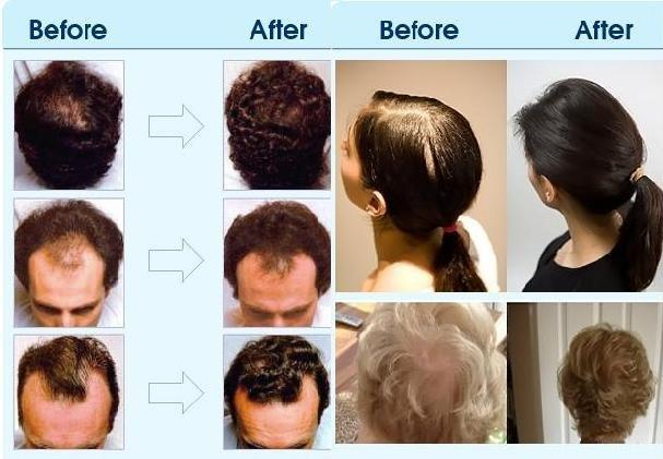 Baldness Treatment Oil And T Hair Natural