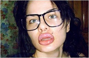Redefining The Face Of Beauty Lip Augmentation