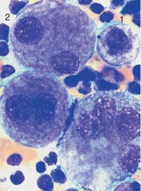 Dysmegakaryopoiesis in myelodysplastic syndrome (MDS)