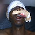 Young man allegedly shot in the head by a police officer in Jos