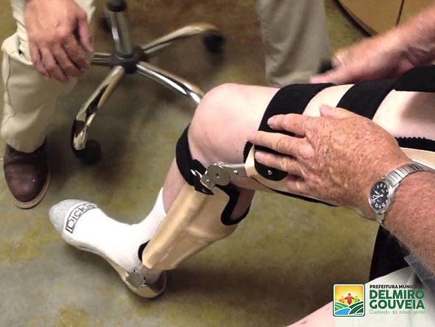 Em Delmiro Gouveia, Adefideg e Secretaria Municipal de Saúde realizam mutirão para fornecimento de órtese e prótese