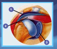 Reumatismo  de partes blandas - Hombro doloroso