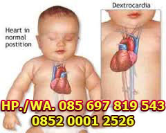 Cara Pengobatan Jantung Bocor Bawaan Pada Bayi Tanpa Operasi
