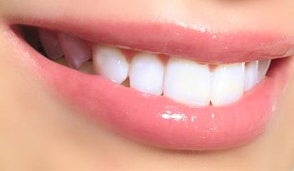 Tips Alami Memutihkan Gigi