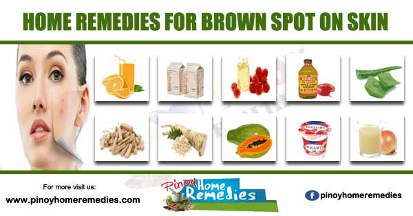 Home Remedies For Brown Spot On Skin