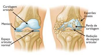 Cara Mudah Mengobati Lutut Kopong Dan Nyeri