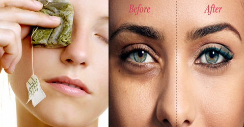 How to Get Rid of Dark Circles Under the Eyes - How to Reduce Eye bags