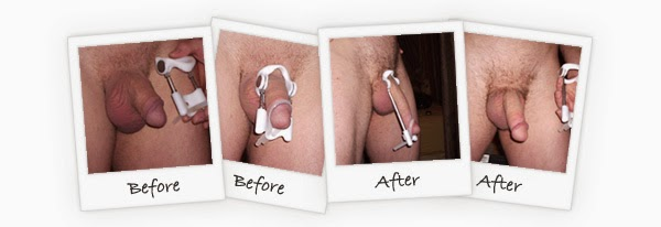 Perubahan ProExtender system after before penis