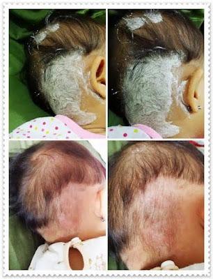 bedak ruam bayi, ruam bayi powder, penyakit kulit, penawar eczema, penawar psoriasis, ruam kulit bayi