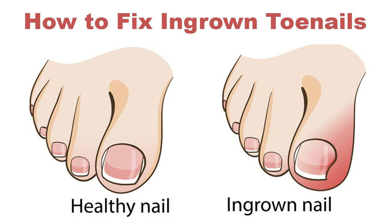 That's How To Cure An Ingrown Toenail