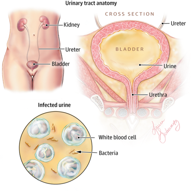 UTIs are caused by bacteria. UTIs usually occur when bacteria enters the urinary tract and reaches the bladder.