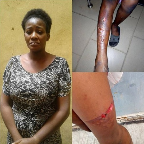 Woman Tortures Her Little Maid With Hot Iron In Lagos (Photos)