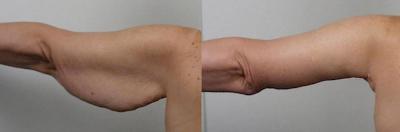 braquioplastia cirugia plastica de brazos en Guadalajara Mexico antes y despues