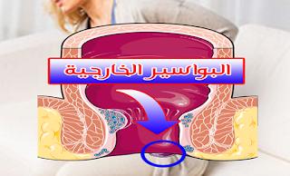 طرق طبيعية لعلاج البواسير الخارجية - اعراض البواسير - اسباب البواسير - انواع البواسير